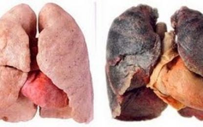 pulmao fumante