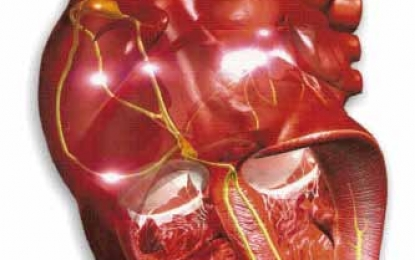 crioplastia